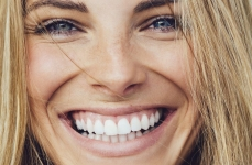 Hollywood smile, the design of a perfect smile